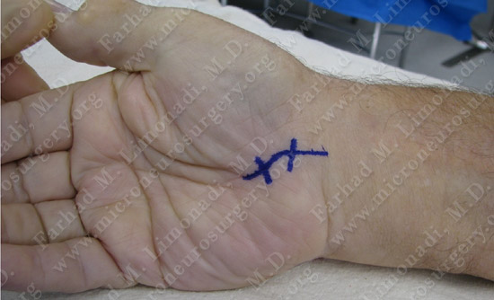 Carpal Tunnel Syndrome Case Image 1