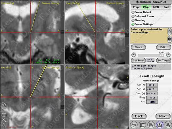 Parkinson's Disease Case 1 Image 14
